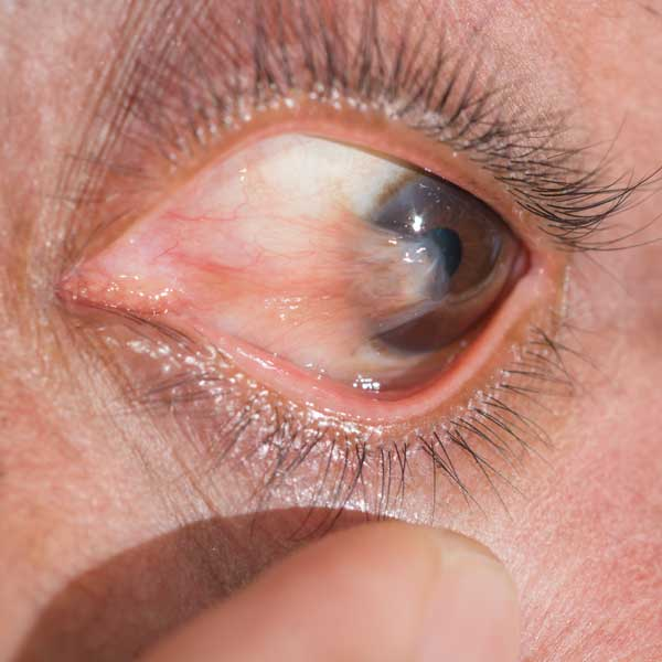Image of Pterygium