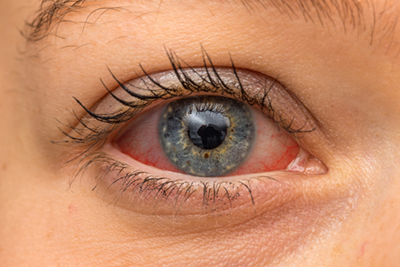 Woman suffering from Dry Eyes Syndrome