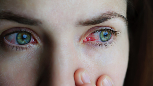 Young woman with eye inflammation suffering from Uveitis